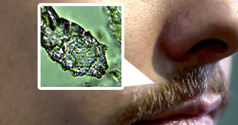 Hey, Guess What! Mites Are Probably Reproducing On Your Face Right Now
